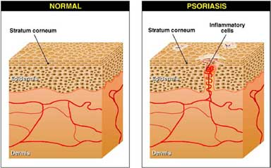 gyógymódok a fejbőr psoriasis véleményeiről